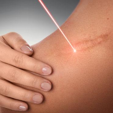 Laser biostymulacyjny