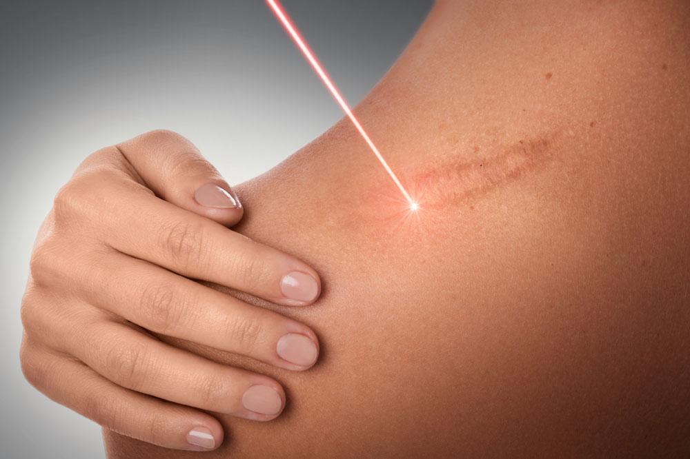 Laseroterapia, leczenie laserem - Dąbrowa Górnicza